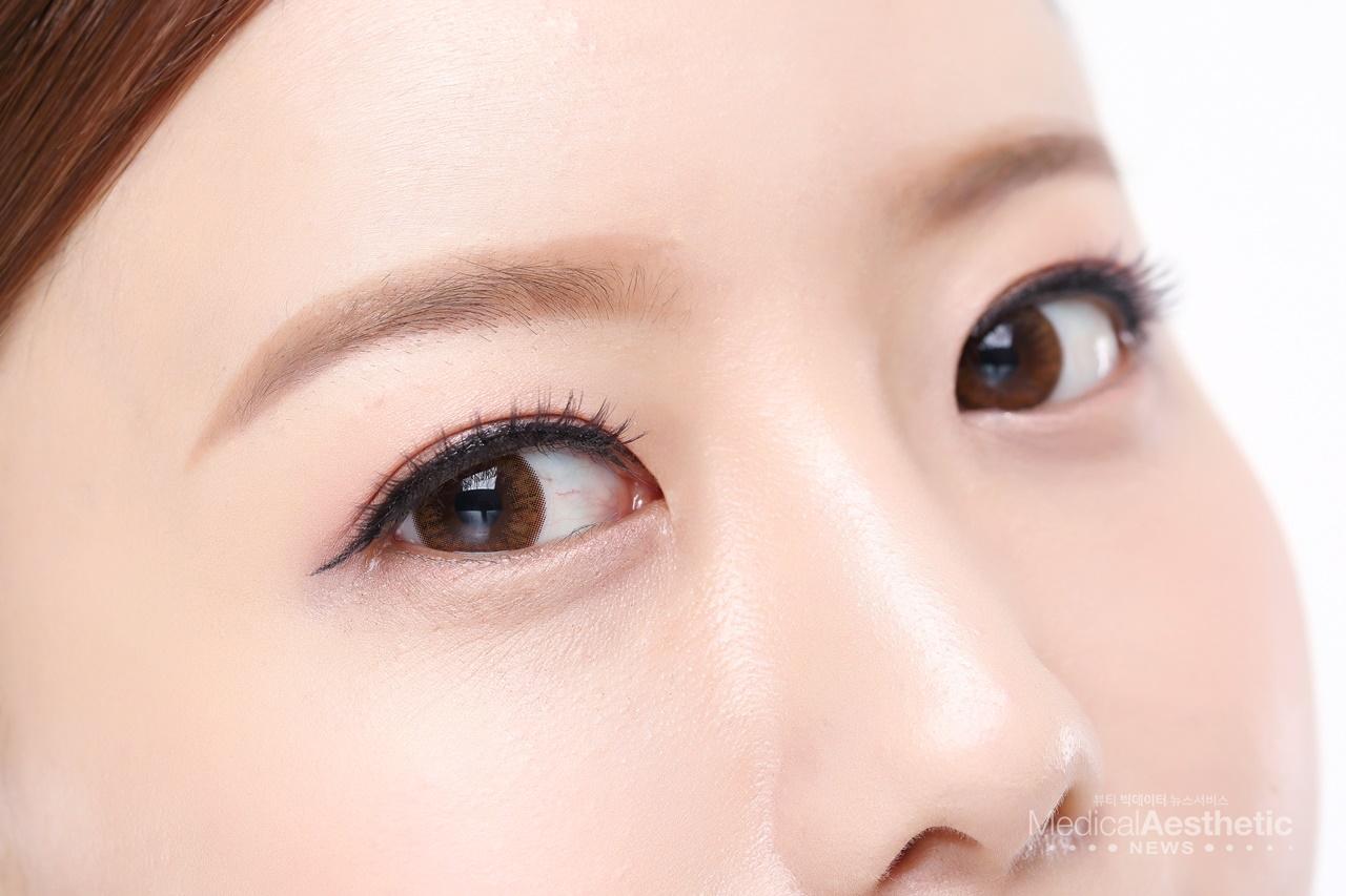 사람마다 눈의 길이, 처진정도, 눈꺼풀 상태 등이 다르고, 그에 따라 수술 방법도 다르므로 나에게 맞는 수술 방법을 찾는 것이 중요하다.