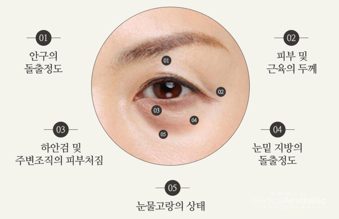 눈밑지방재배치 수술시 고려되는 요소들 (자료제공 : 다빈치성형외과)
